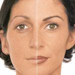 permanent make-up vorher-nachher